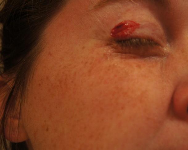 Beth Hurt her nose